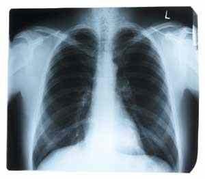 ÉRTESÍTÉS tüdőszűrő vizsgálatról